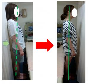 腰の反りと腰痛